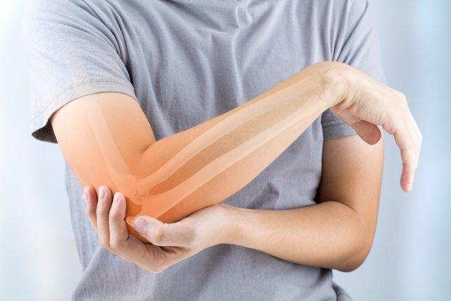 Artritis reumatoide: consejos para estar sano