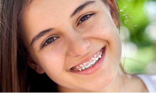La ortodonica invisible, cada vez más solicitada
